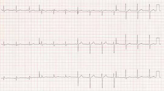 Case: Atypical Presentation of Acute Ischemic Heart