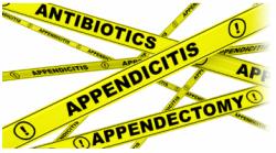 appendicitis-antibiotics