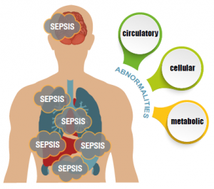failure-to-diagnose-sepsis